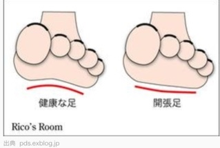 外反母趾の前ぶれ~その2・開帳足~ | 神戸三宮|外反母趾・現役ナース外来!足の痛みを改善する、インソールセラピー